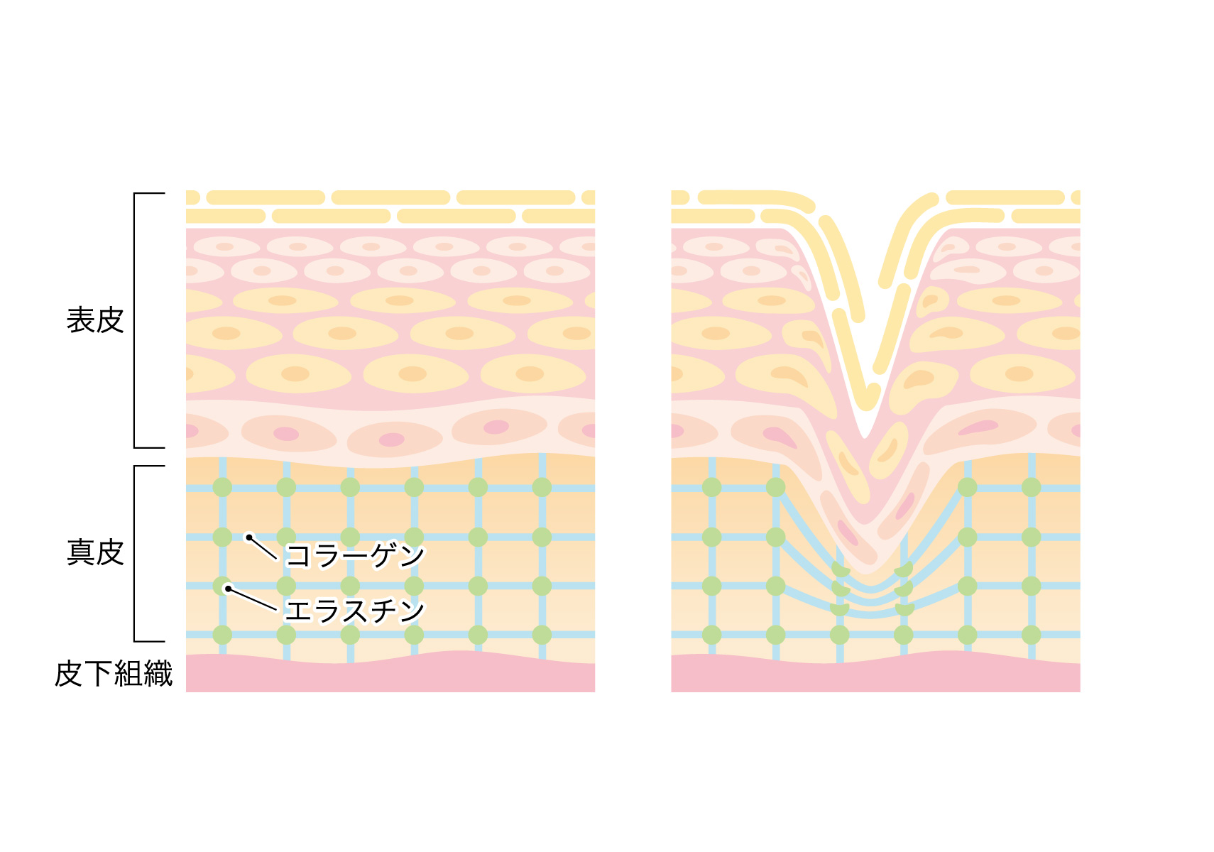 皮膚構造角質層